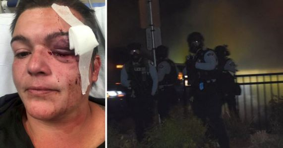 Photographer Sues Police for Blinding Her Left Eye, Uses Last Photo as Proof