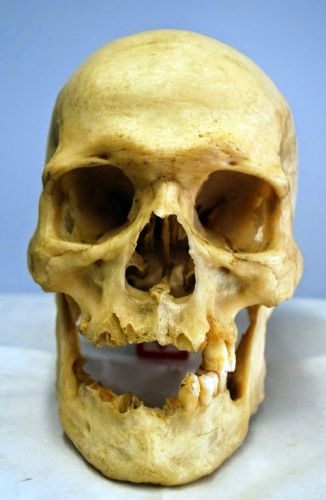 Skull and Face Hyper Realistic Reconstructed Sculpture 3 Revisited