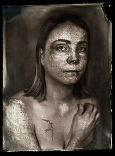 Wet Plate Collodion Portraits of Burn Victims